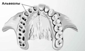 Как лечить альвеолит